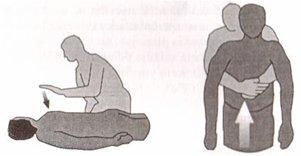 Obrázek - Heimlichův manévr